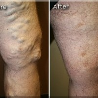 Varicose Before and After 1