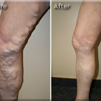 Varicose Before and After 3