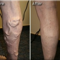 Varicose Before and After 4