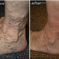 Varicose Before and After 5