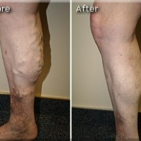Varicose Before and After 6