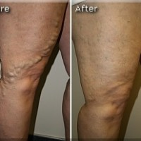 Varicose Before and After 7