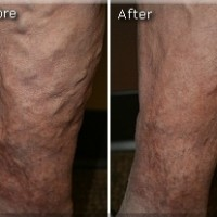 Varicose Before and After 8