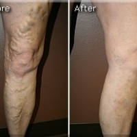 Varicose Before and After 9