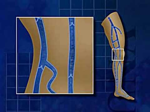Venous Reflux Education Video